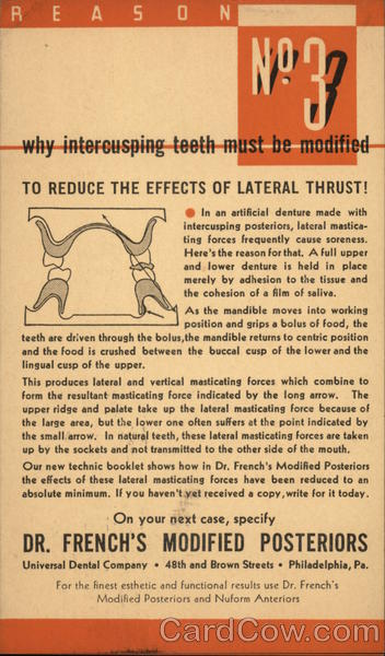 Why Intercusping Teeth Must Be Modified Advertising