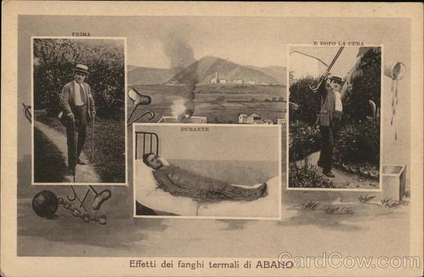 Effetti dei fanghi termali di Abano