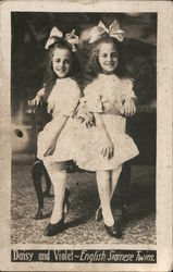 Daisy and Violet - English Siamese Twins