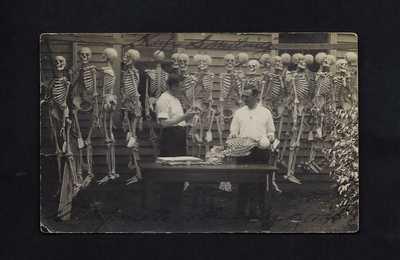 1911 Davenport, Iowa - REAL PHOTO POSTCARD RPPC - Human Skeletons & Researchers!